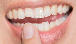Closeup of smile with chipped front tooth